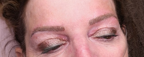 eyebrow treatement